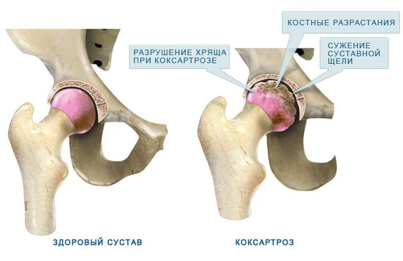 Разрастание суставов воспаление коленного сустава и сухожилия