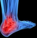 artrosis-gol