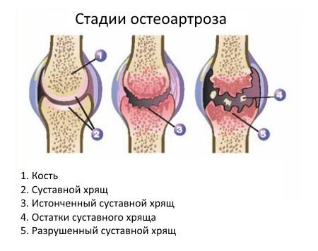 artrosis-scheme