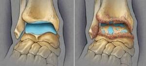 artroz-golenostopnogo-sustava