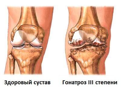 osteoarthritis4