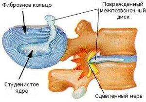 simptomy-grudnogo-osteohondroza2