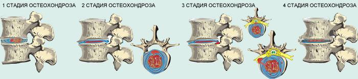 stepeni-stadii-osteohondroza