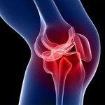 artrosis-kol