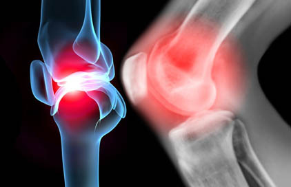 X ray of knee leg in pain
